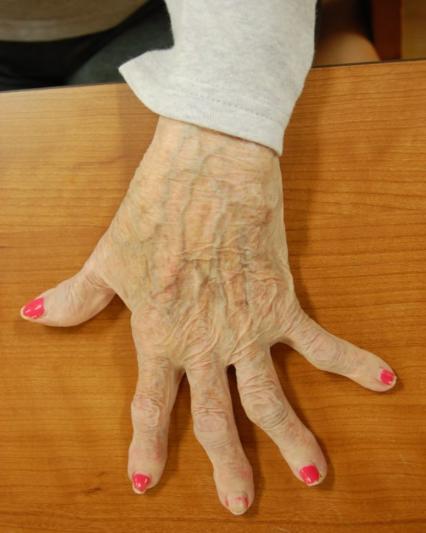 arthritis-pain-guide-to-relief