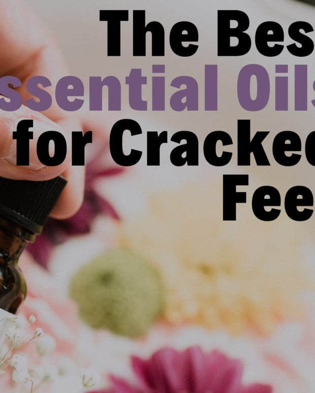 treating-cracked-heels-and-fissures-with-essential-oils