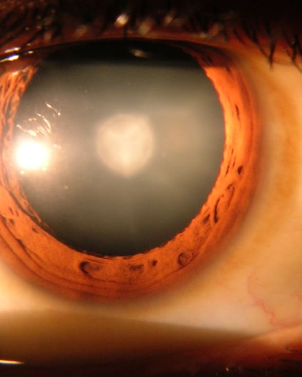 crystalens-cost-with-cataract-surgery