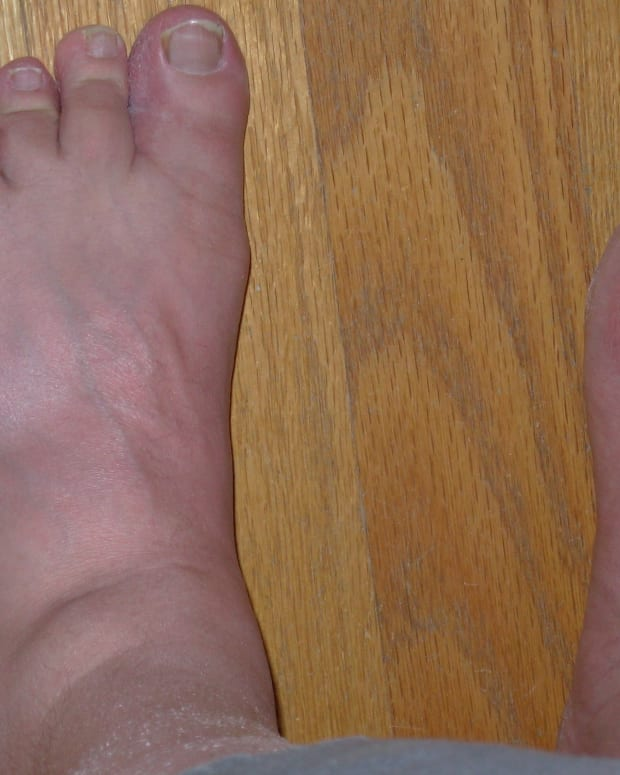 8-foods-to-avoid-with-gout