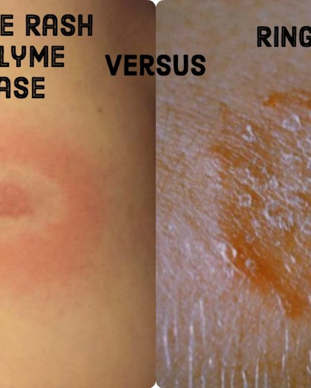 ringworm-vs-lyme-disease-how-to-tell-the-difference-between-the-bulls-eye-rash