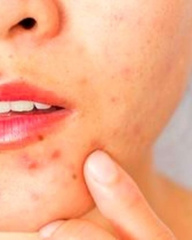 simple-ways-to-eliminate-pimples