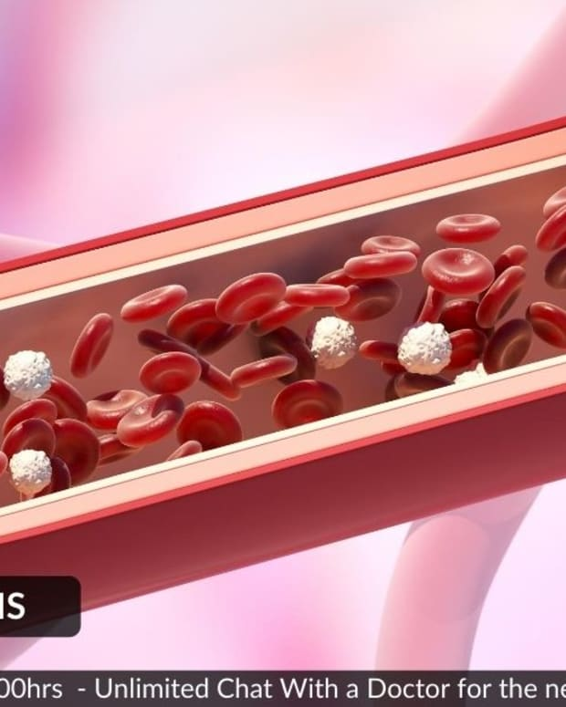 risk-factors-cause-endothelial-dysfunction-and-inflammation-which-ultimately-leads-to-atherosclerosis