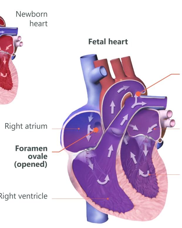 patent-ductus-arteriosus-pediatric-heart-defect