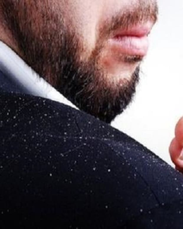 how-to-remove-dandruff-from-hair