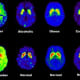 PET scans comparing addictions with normal brains.