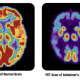 new-level-of-coma-after-flat-line-neurophysiologists-discover-brain-re-ignition