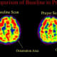 Scans of Franciscan nuns in prayer, shows activity in the superior parietal lobe, where the brain's responsibility is for orientation. Activity decreases significantly during prayer as per Newberg's study.