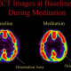 """Brain scan of Tibetan Buddhist meditators. Meditating on the right shows decreased activity in the parietal lobe. The parietal lobe handles orientation in space and time providing feeling of """"spacelessness"""" and """"timelessness"""" during religious experie"""