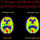 A brain scan of a long-term meditator who was also an atheist. The person was scanned at rest and while meditating on the concept of God. The results showed that there was no significant increase in the frontal lobes as with the other meditation prac