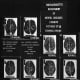 An image of a 1920s image attempting to associate brain types to criminal behaviour. The theory is named biological determinism - heredity, more than environment or education, the idea went, caused social problems.