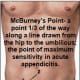 McBurney's Point, diagram shows where this area is located, your appendix location.