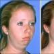 Chin implants increase self-esteem