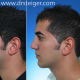 Nose and chin surgery balance the face for improved harmony