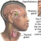 thyrotoxicosis-personal-experiences-of-living-with-thyroid-problems