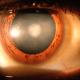 cataract-sufferer