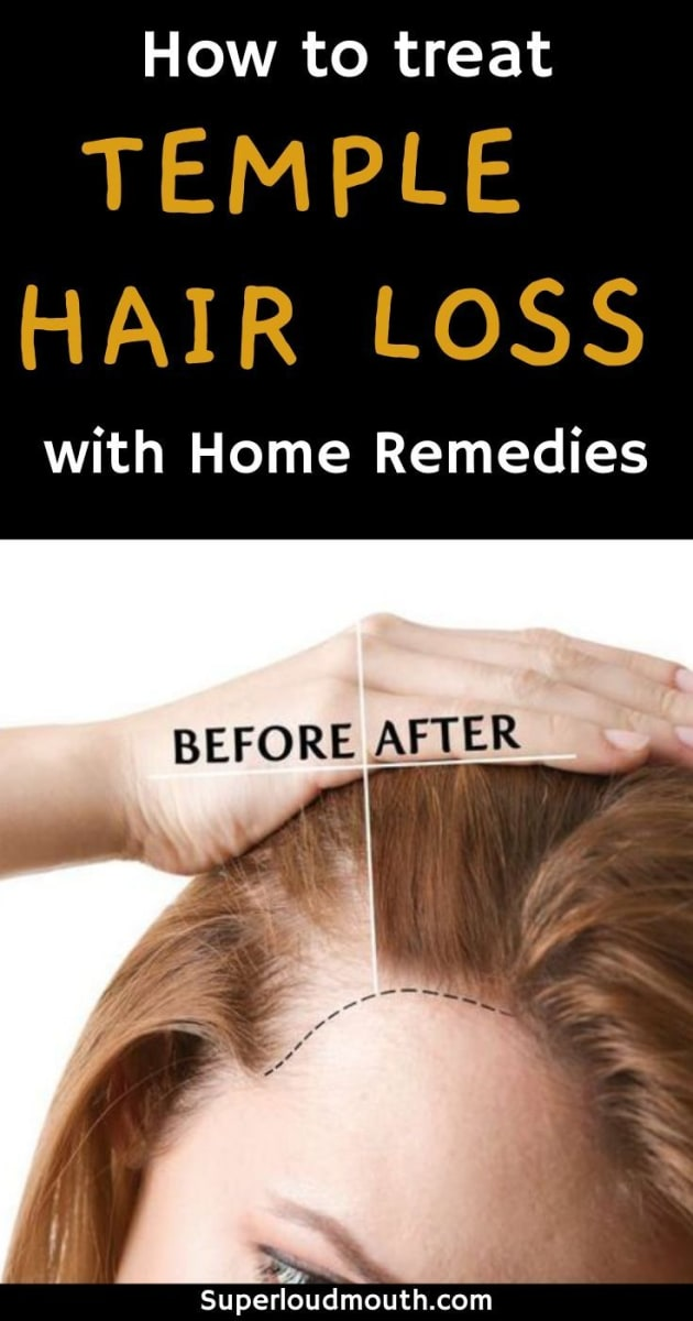 Hair Fall And Remedies