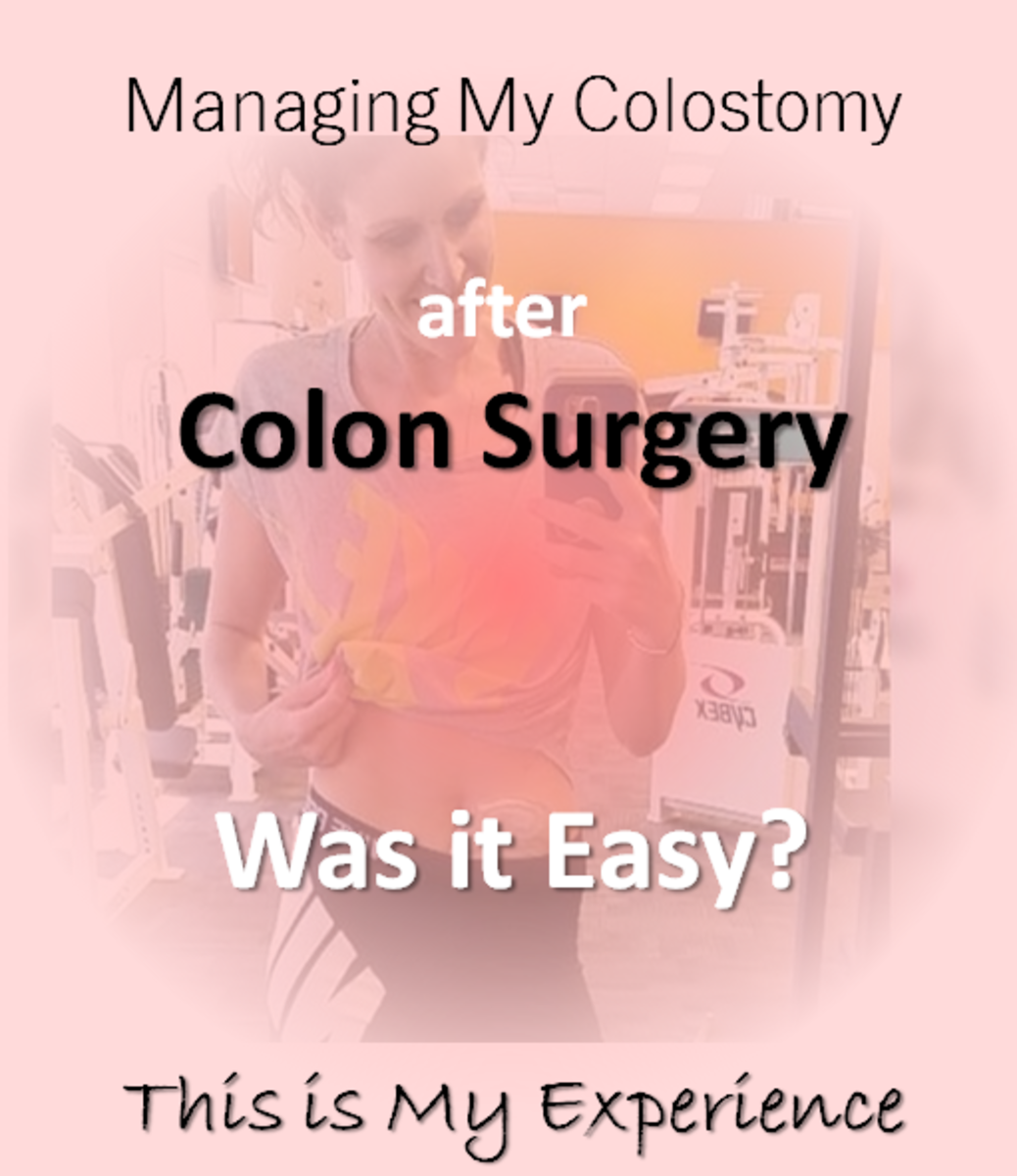 Is Managing a Colostomy After Colon Surgery Easy? - This Article is About My Experience