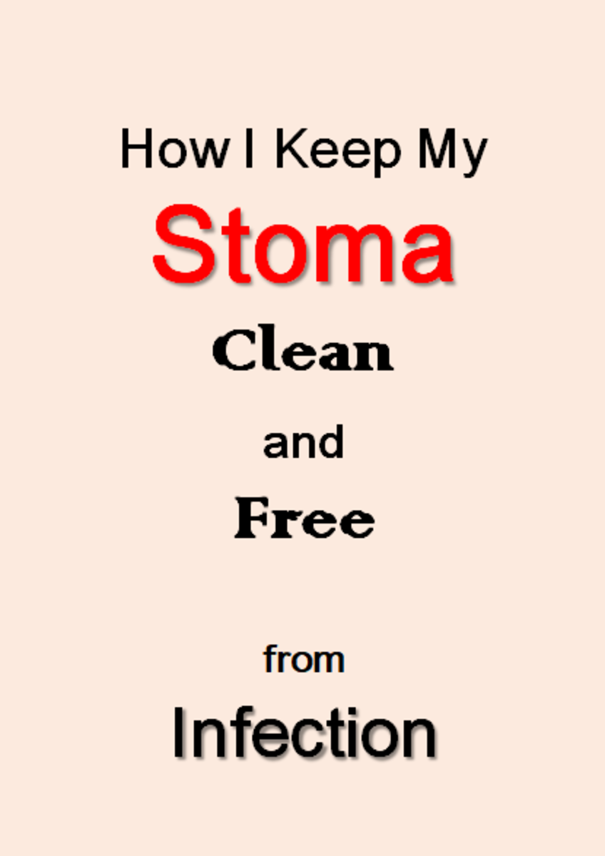 Stoma Care: How I Keep My Stoma Clean, To Avoid Infection