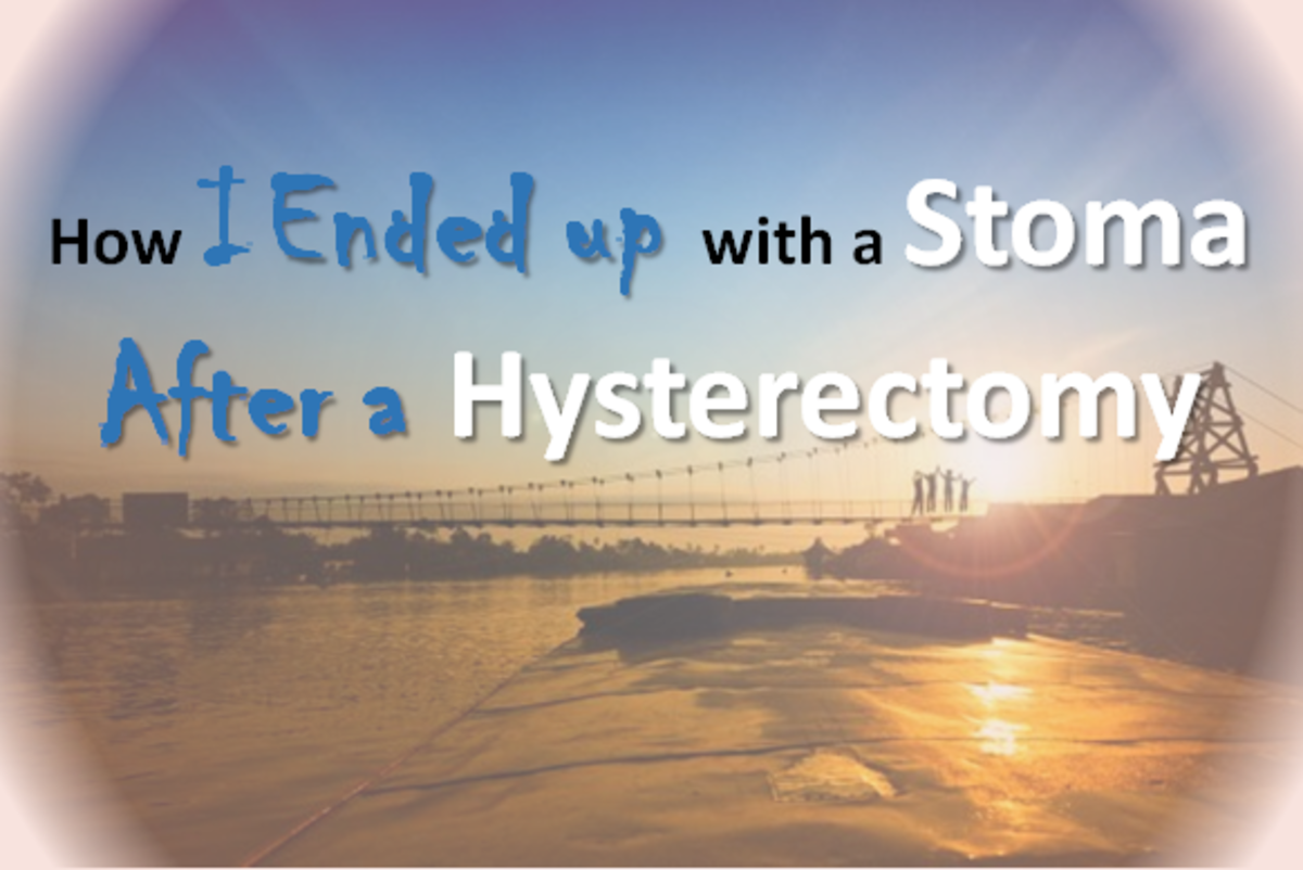How I Ended up With a Stoma After a Hysterectomy!
