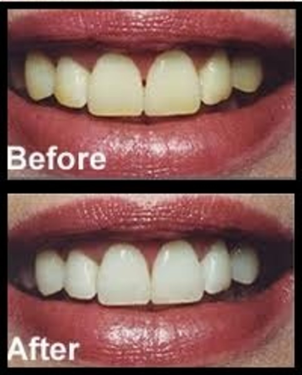 Homemade Teeth Whitening Recipe - Before and After Baking Soda