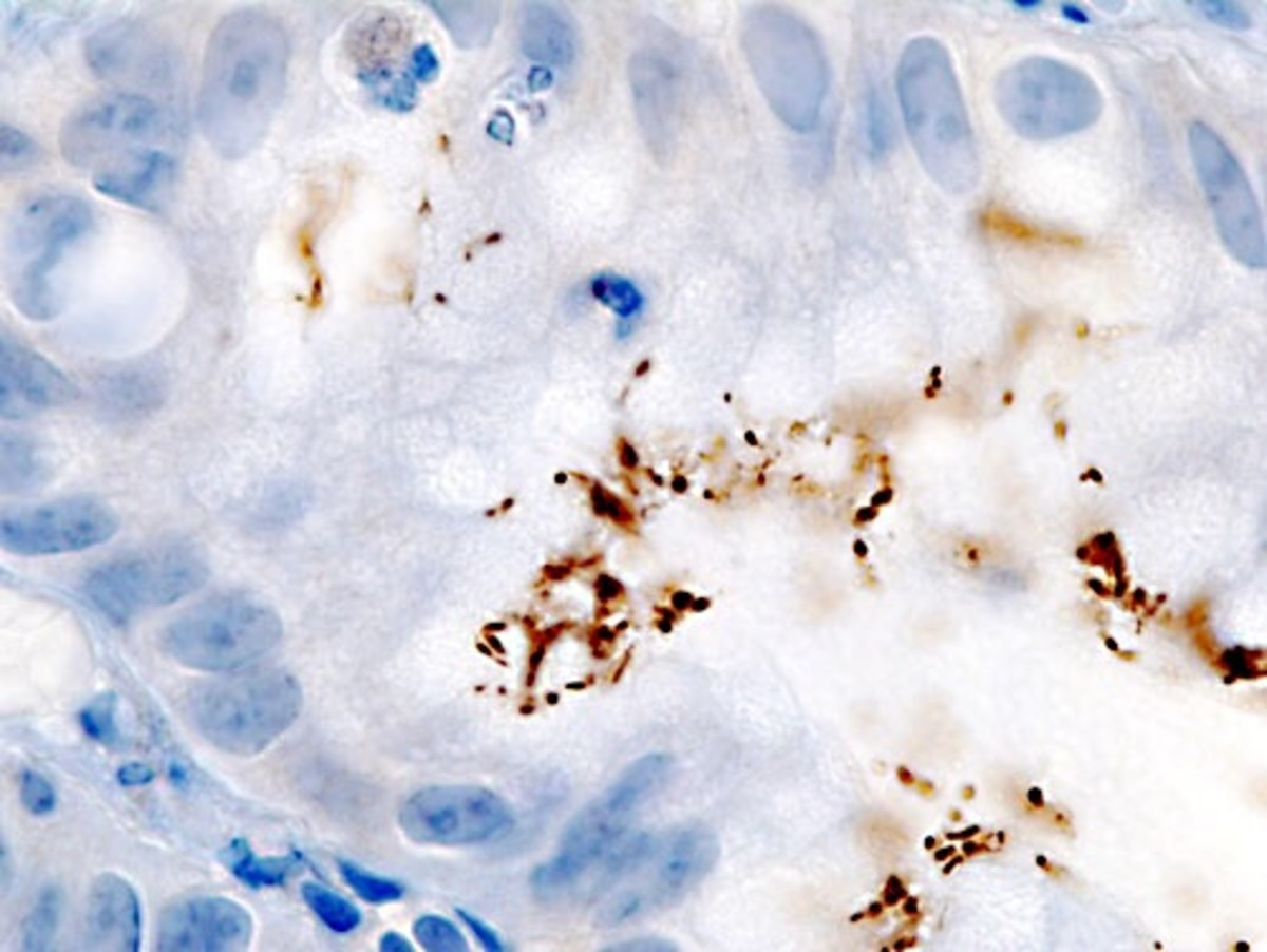 Helicobacter pylori (stained brown) in a sample taken from a person's stomach lining (stained blue)