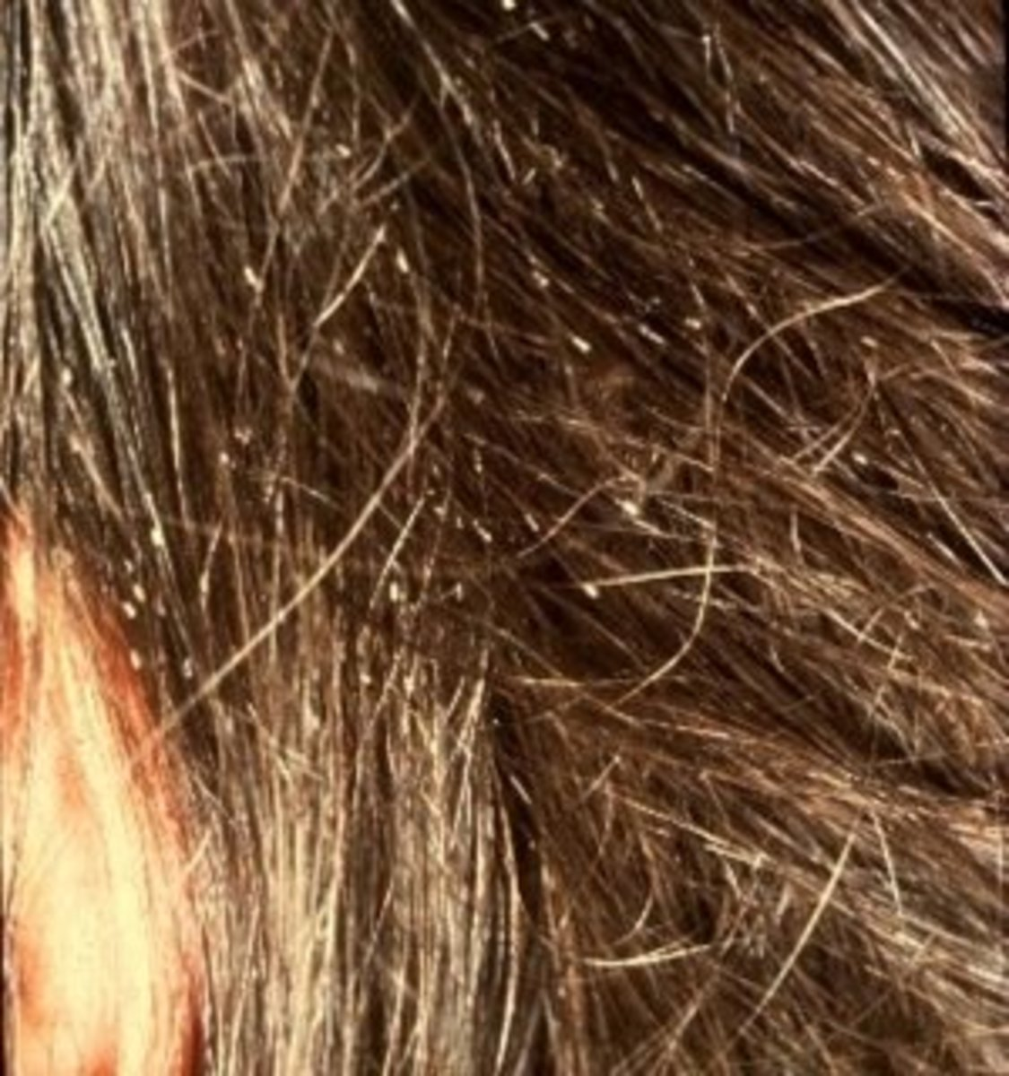 Close up of nits in a girl's hair