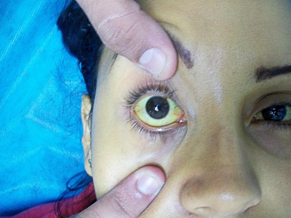 Jaundice in the sclera (white) of the eye
