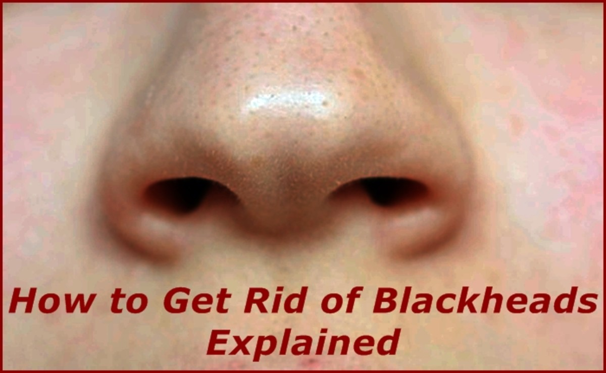 How to Get Rid of Blackheads Explained | Bellatory