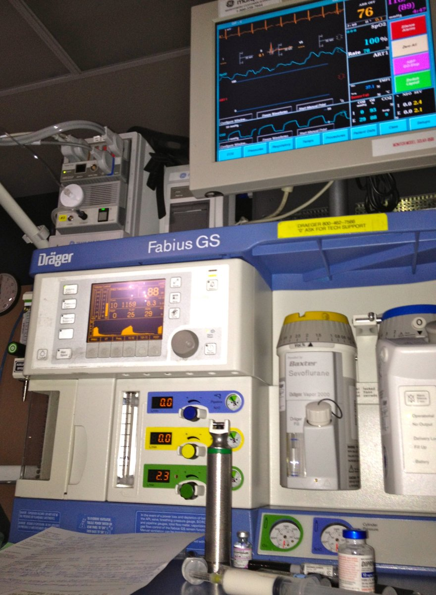 Anesthesia gas is delivered to the lungs from the anesthesia machine/ventilator. Here the anesthesia vaporizors are the canisters on the right. Sevoflurane has a yellow top, desflurane has the blue top.