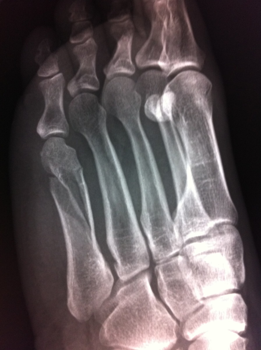 Twisted and broke my 5th metatarsal in my foot due to decreased bone density. This happened over a year after I stopped taking it.