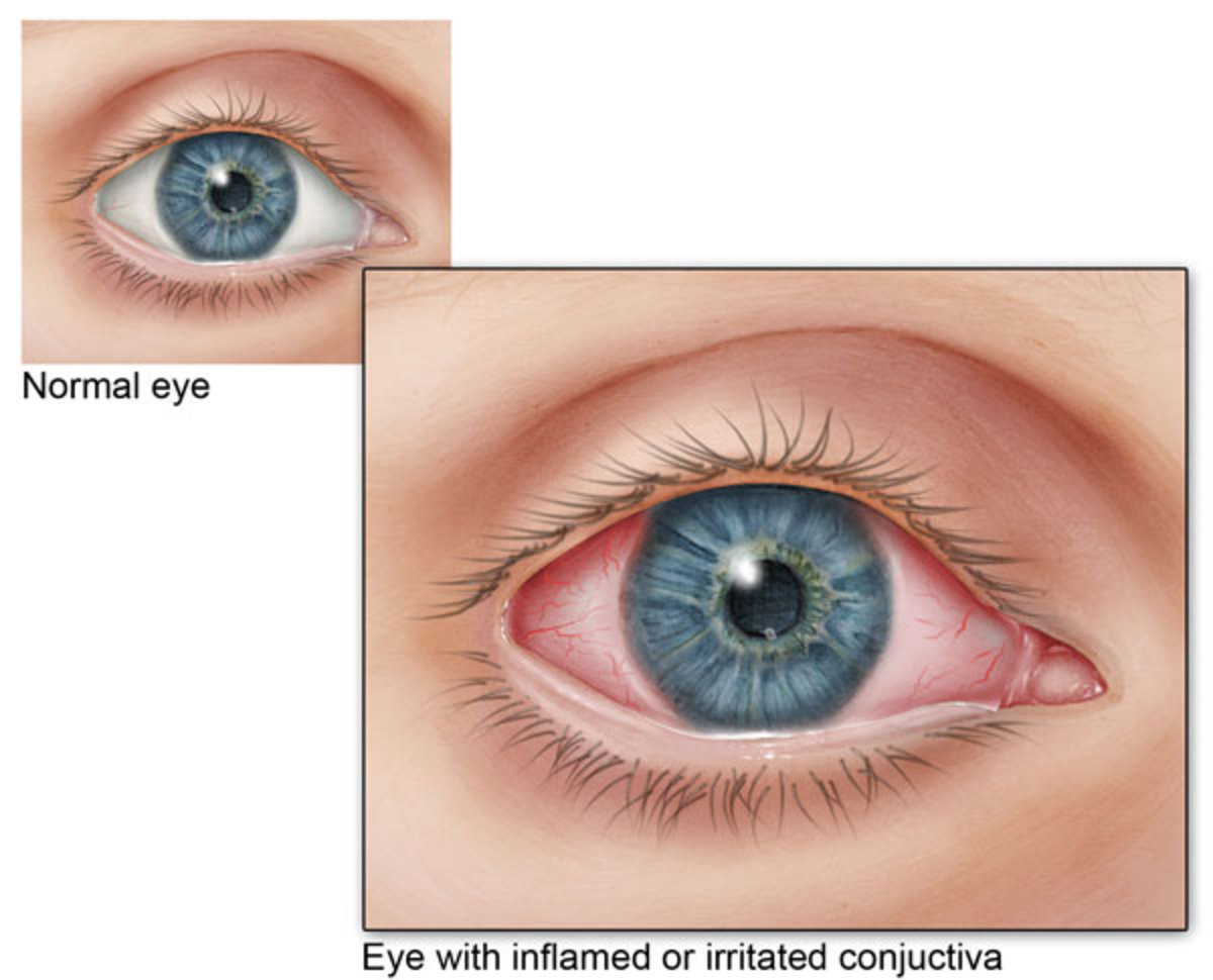 Pink Eye. Image by Centers for Disease Control and Prevention (NIH) (Centers for Disease Control and Prevention (NIH)) [Public domain]