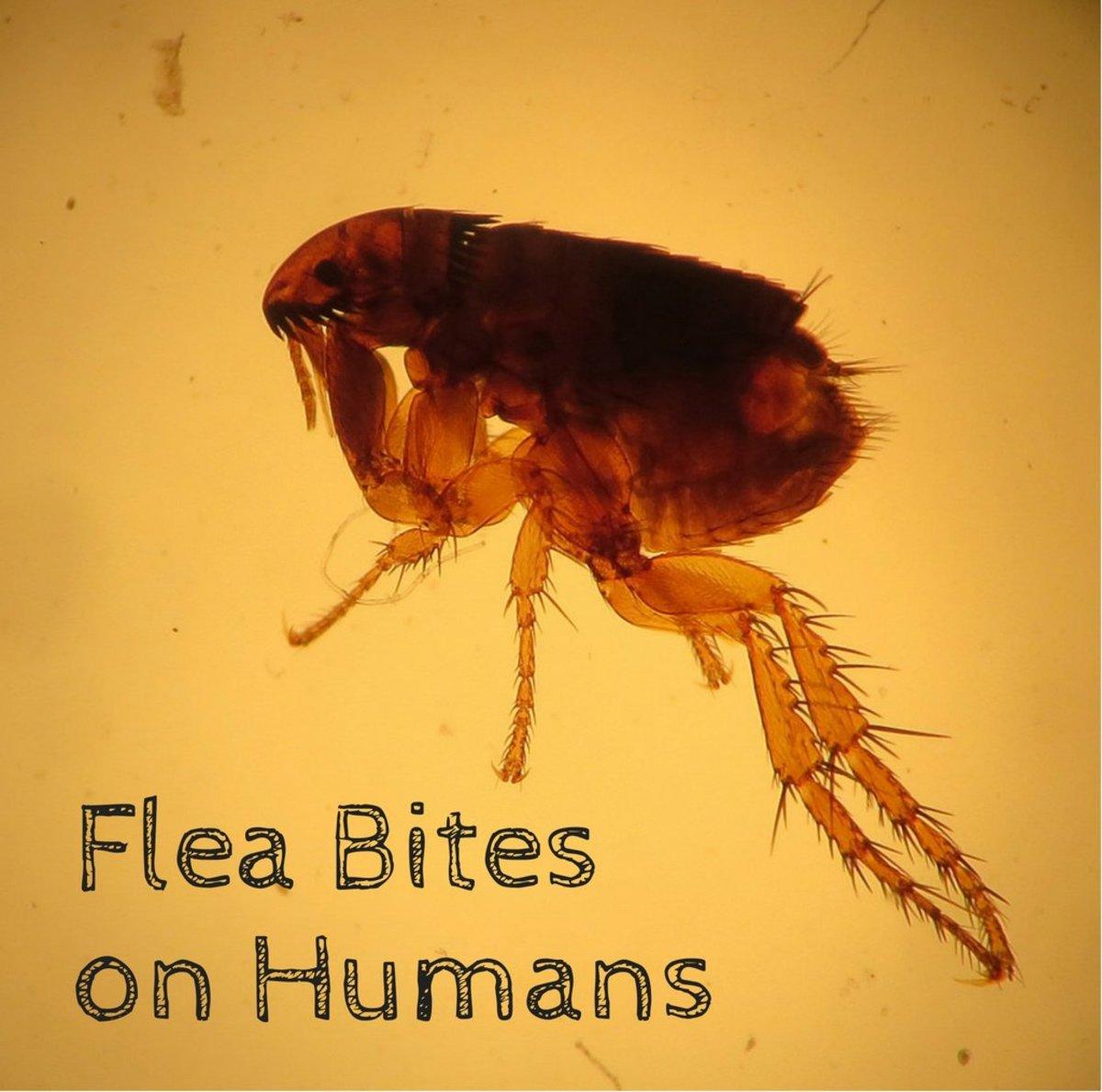 Flea Bites on Humans: Symptoms and Treatment