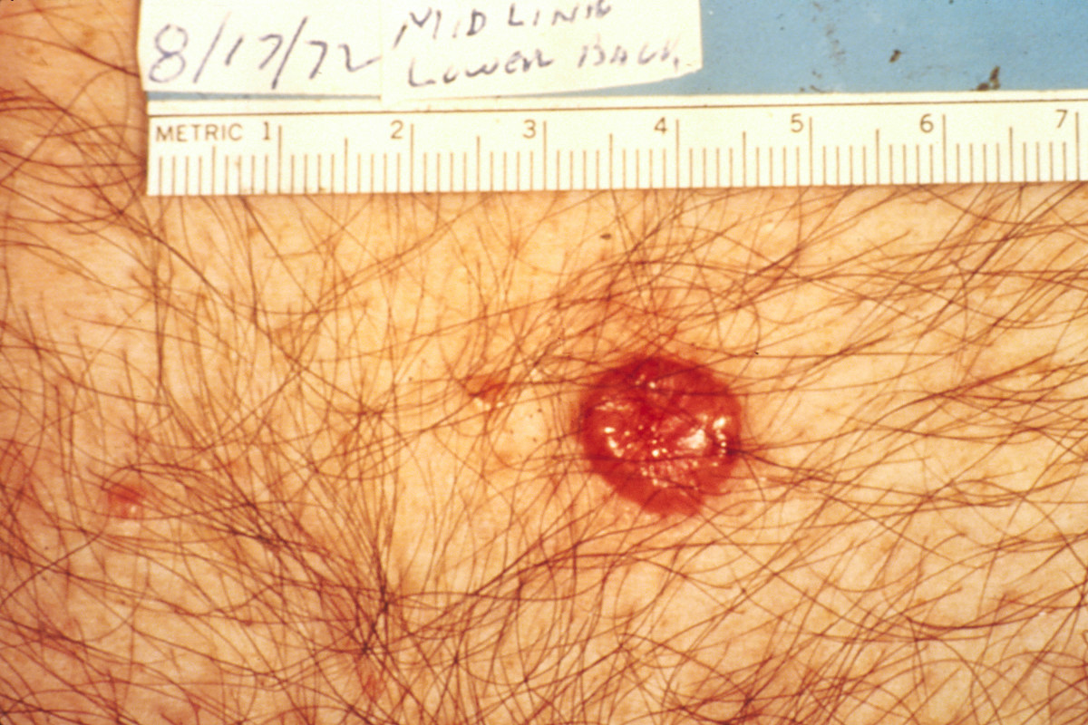 How I Discovered My Basal Cell Carcinoma (Skin Cancer)