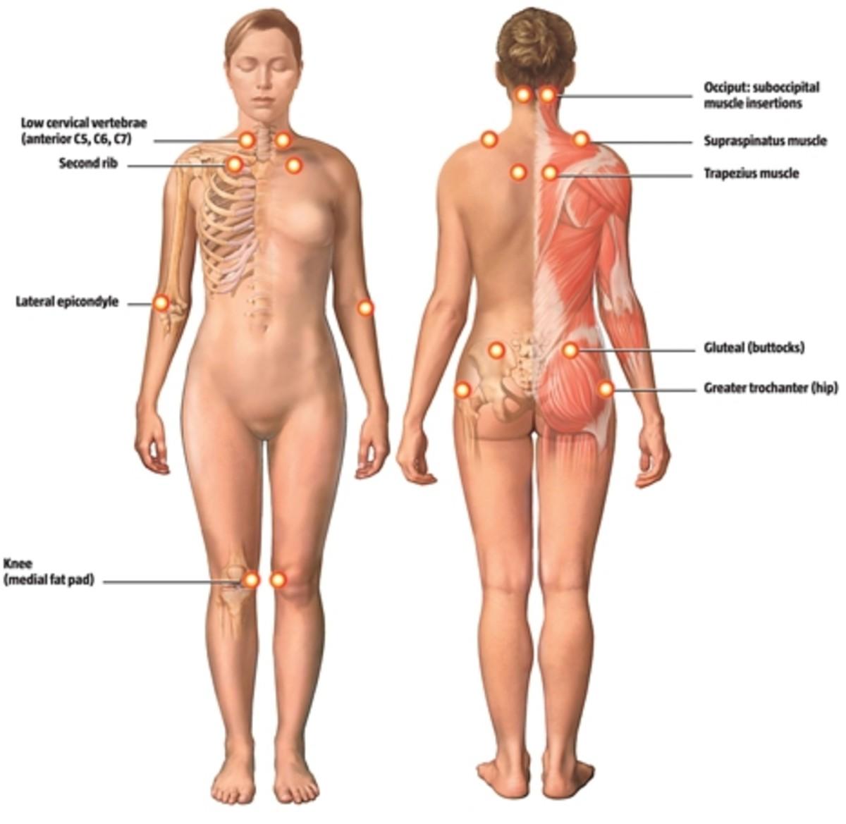 The diagnostic tenderpoints on fm patients.
