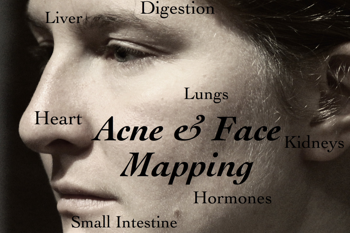Understand where your acne zones are and what they mean about your internal health.