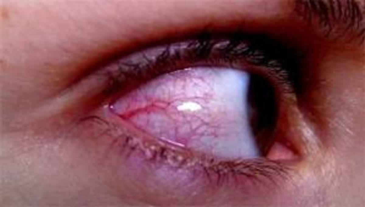 What Can Be Done About Red Veins on the Whites of the Eyes?