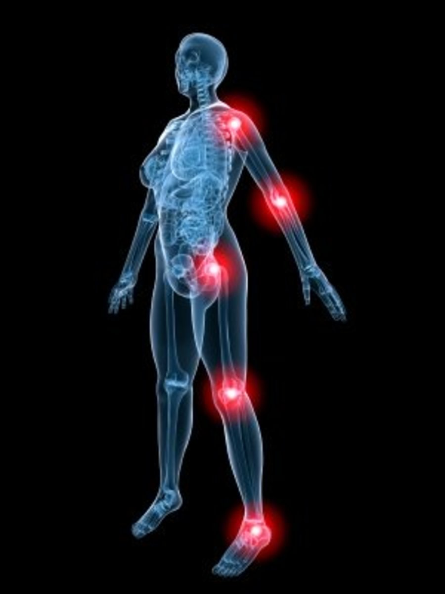 Top Ten Natural Remedies to Reduce Joint Pain & Stiffness
