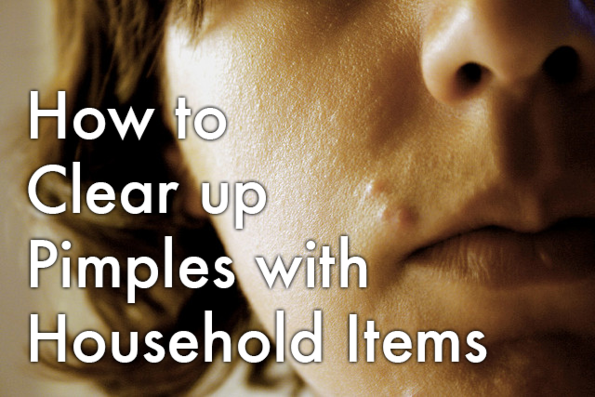 How to treat and prevent pimples with household items.