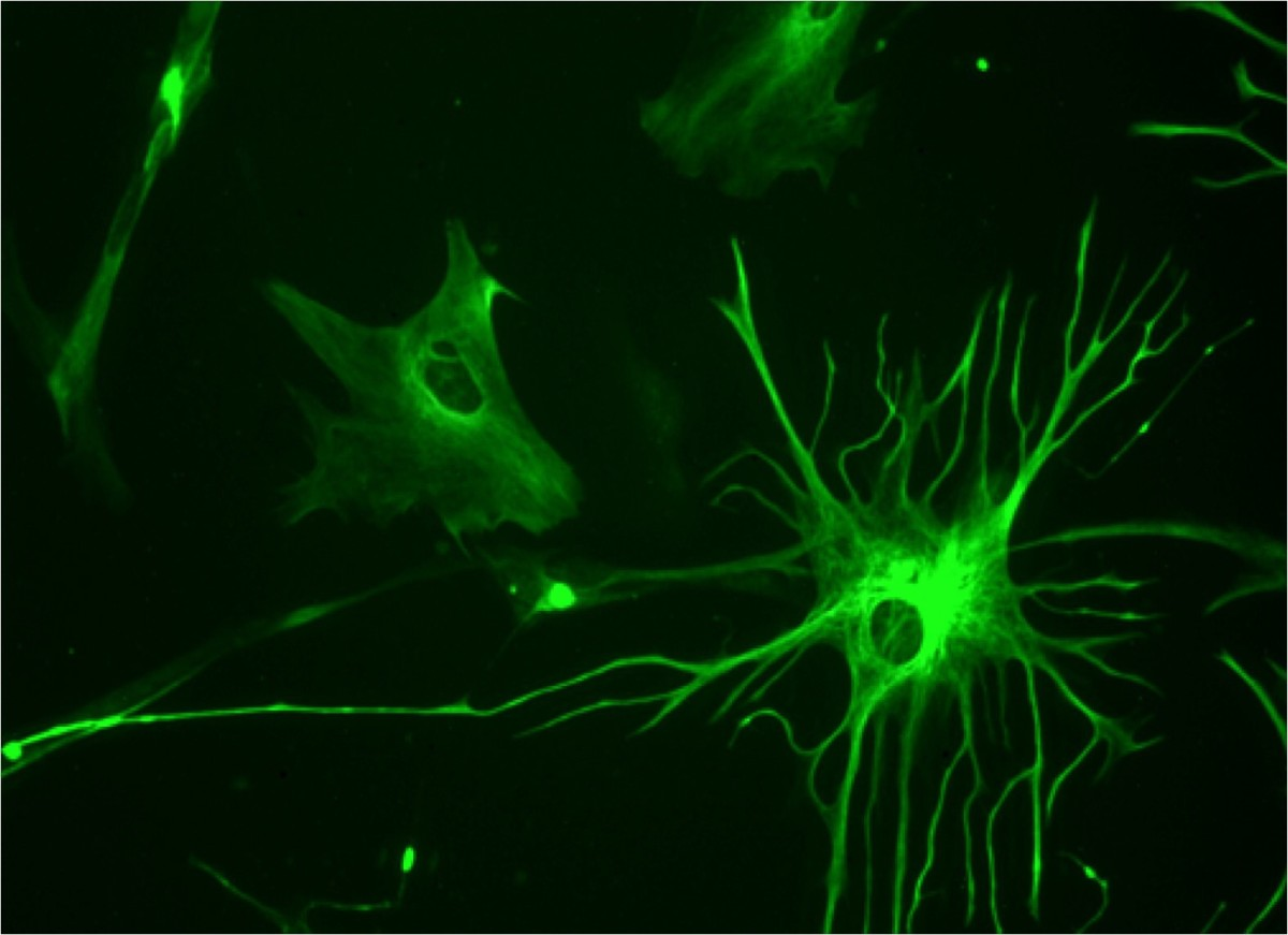 Glial Cells, Astrocytes, Neurons and Amyotrophic Lateral Sclerosis