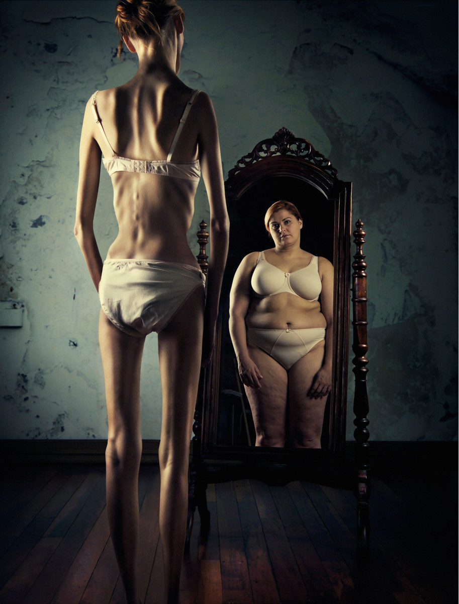 Those with anorexia nervosa suffer from distorted body image.