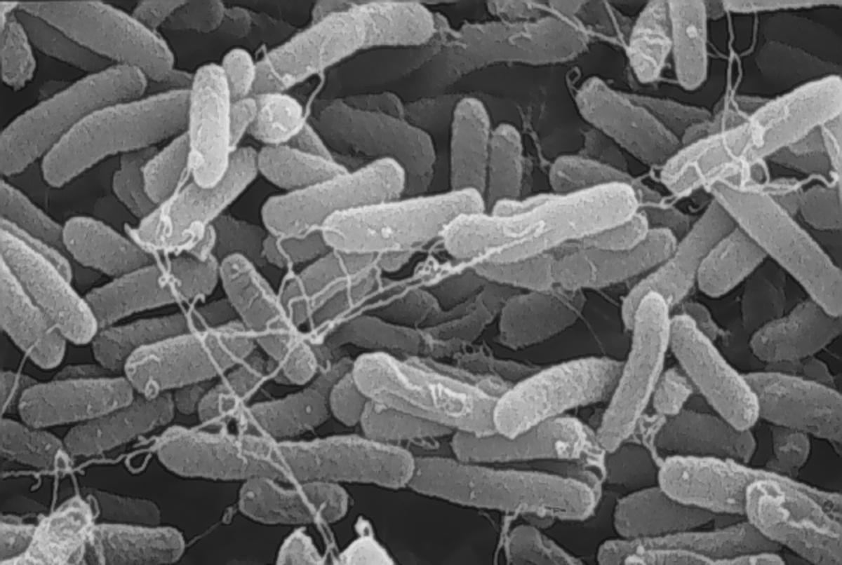 E. coli O157.H7