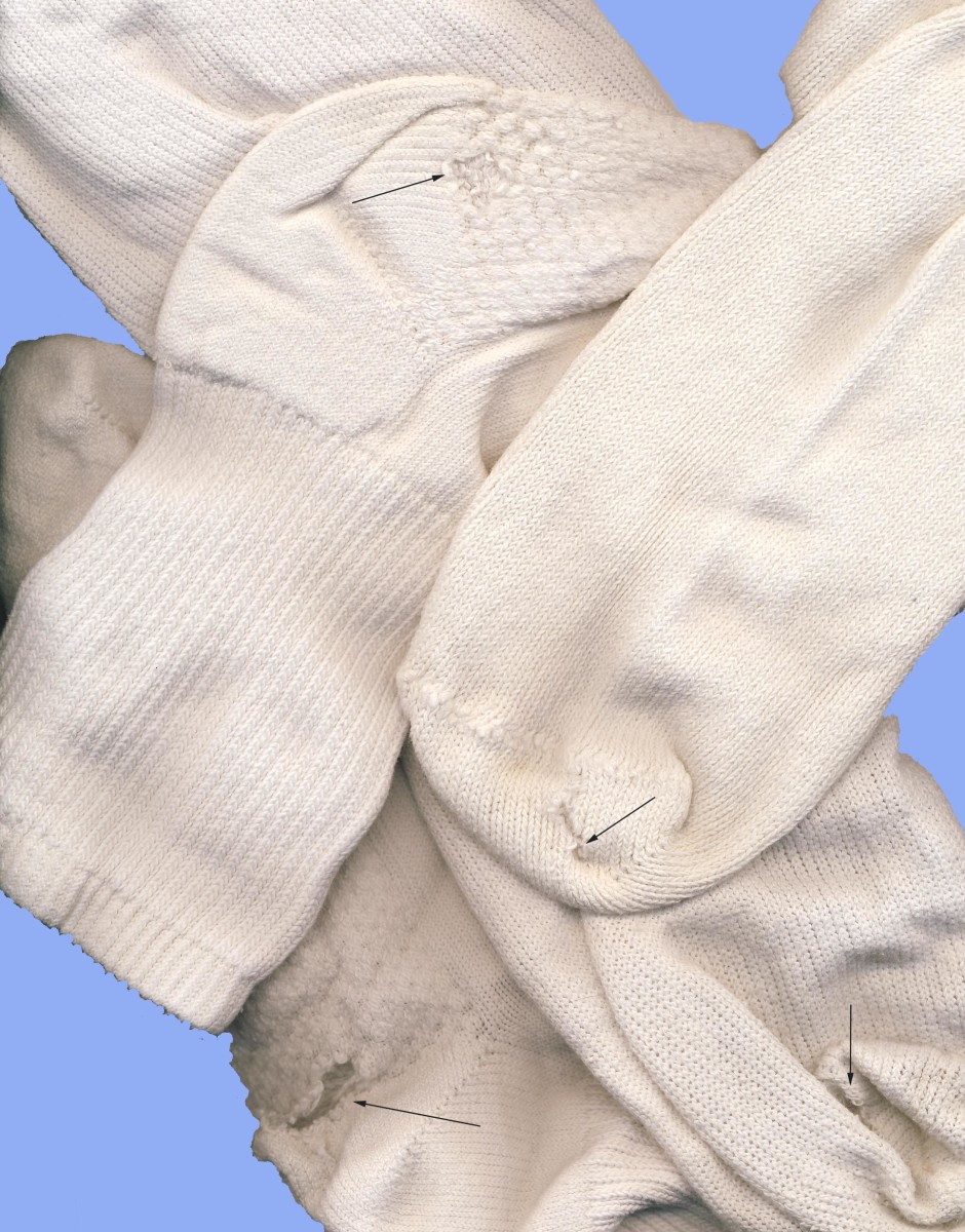 Are socks with holes really lost causes?
