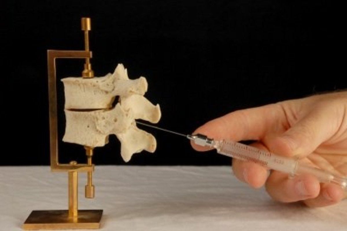 Image showing how the needle is introduced between the vertebrae for spinal anesthesia or epidural anesthesia.