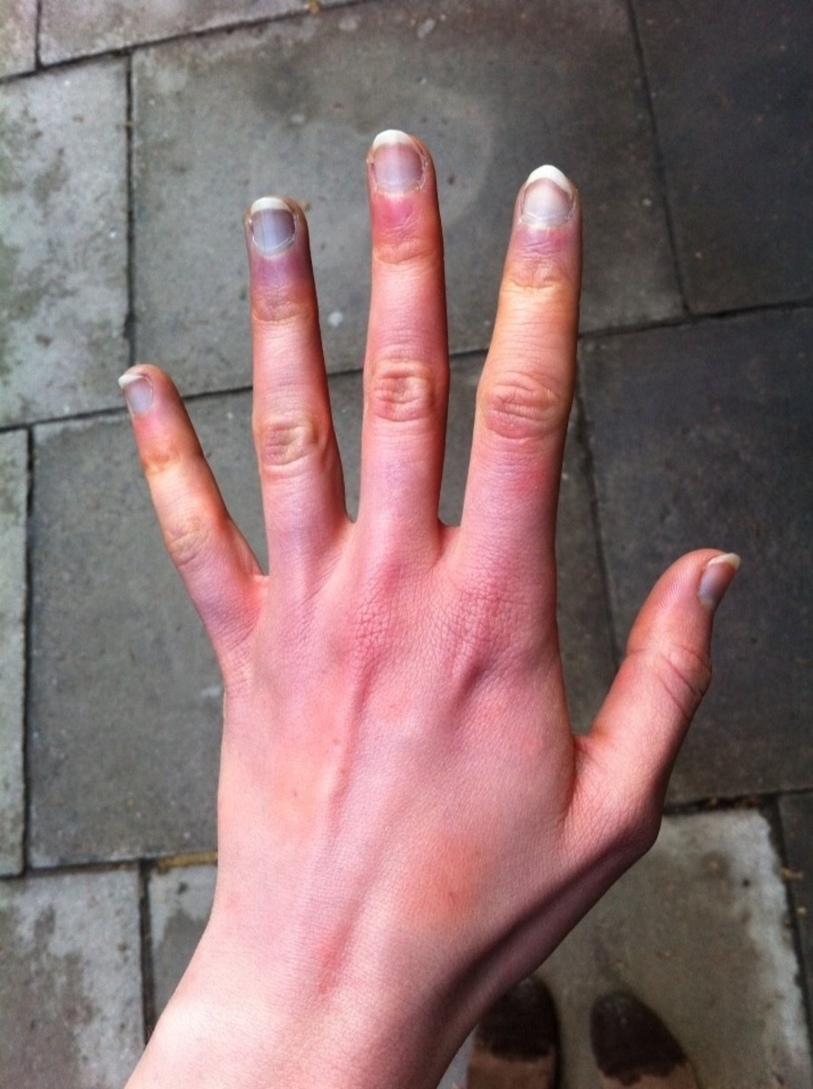 Cold Blue Hands: Why are My Hands Turning Blue?