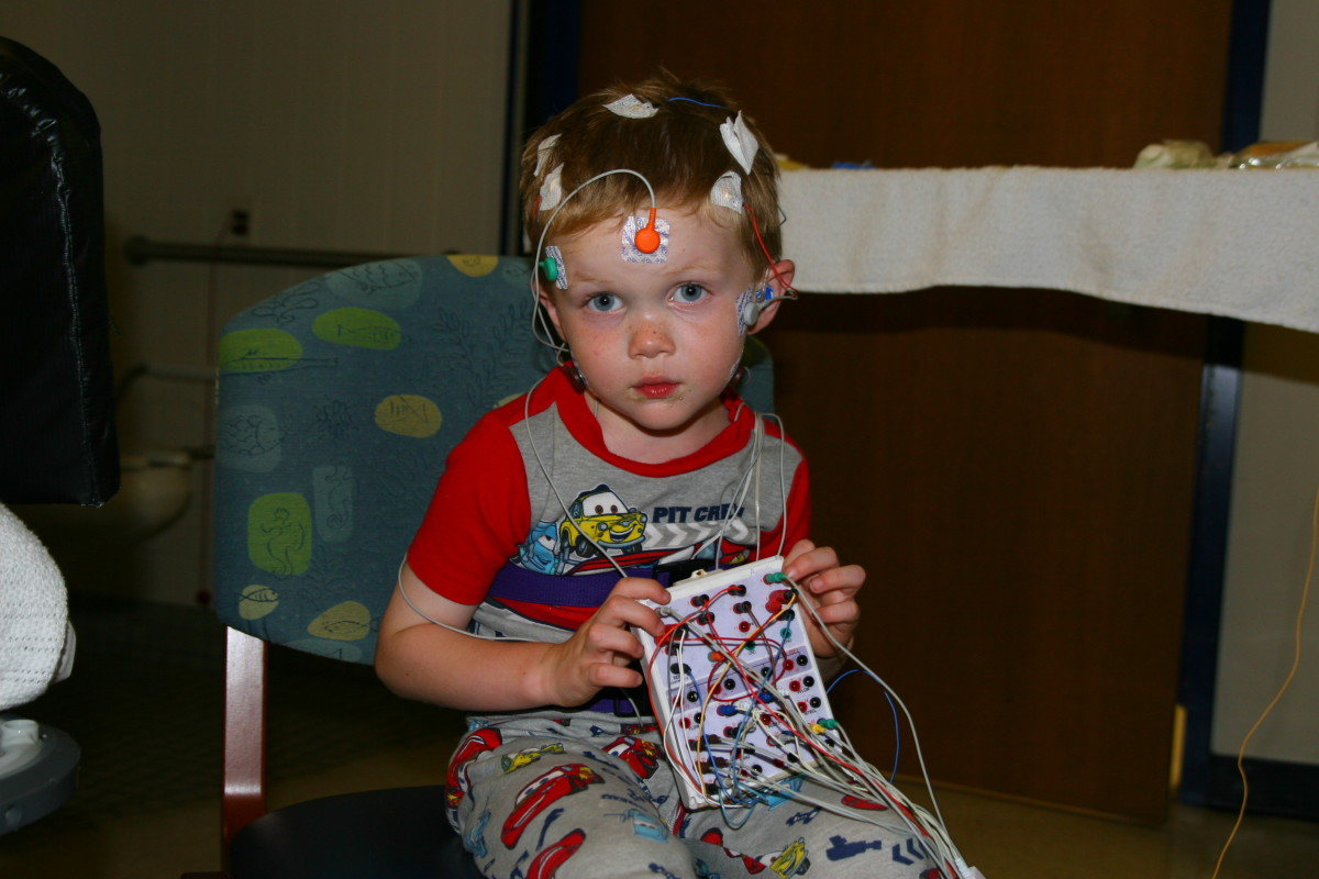Sleep studies require a lot of sensors and wires. In this photo, our son has about half the required sensors attached.