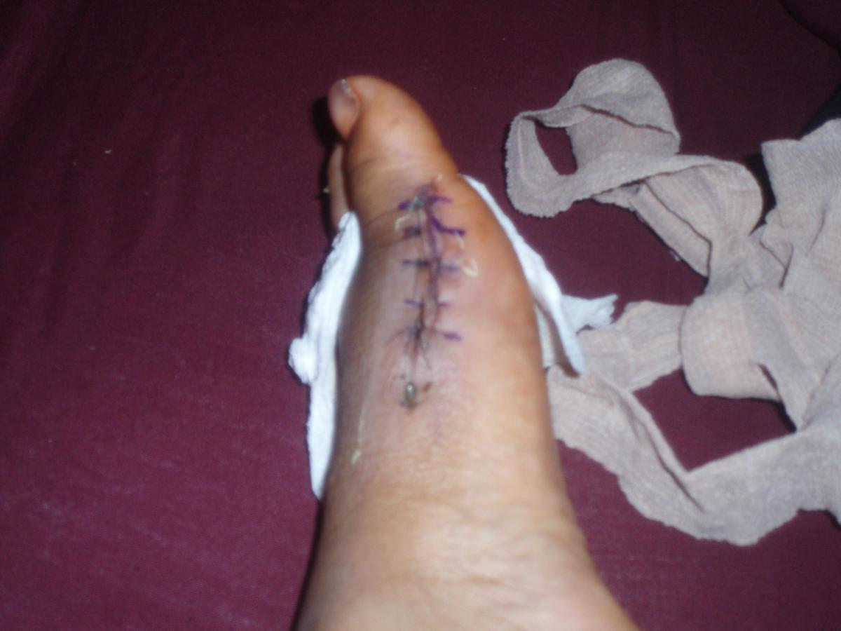 After Bunion Surgery on My Foot:  Six Months Later