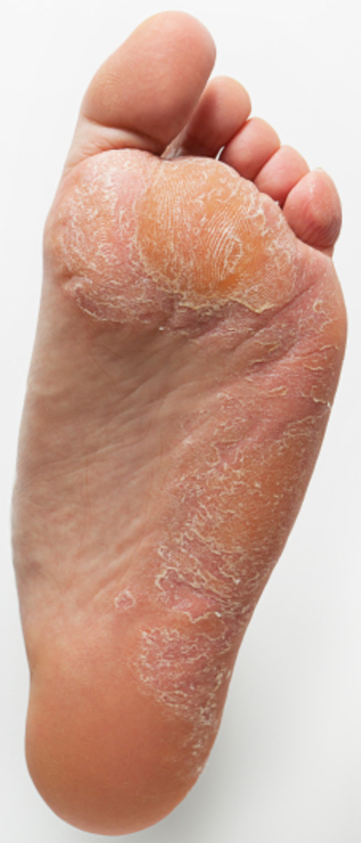 Tips for Successfully Removing Corns & Callusus on the Feet
