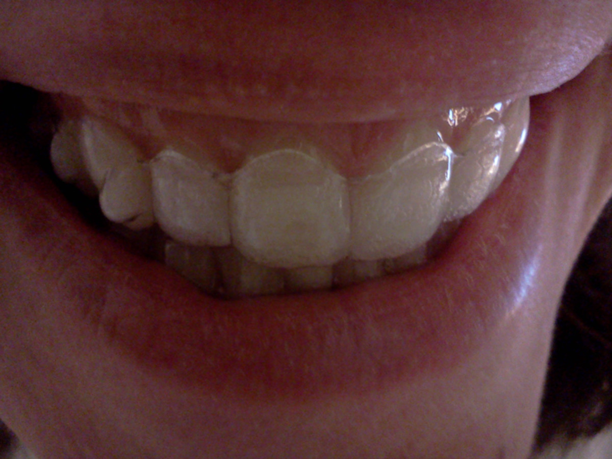 My Invisalign Smile