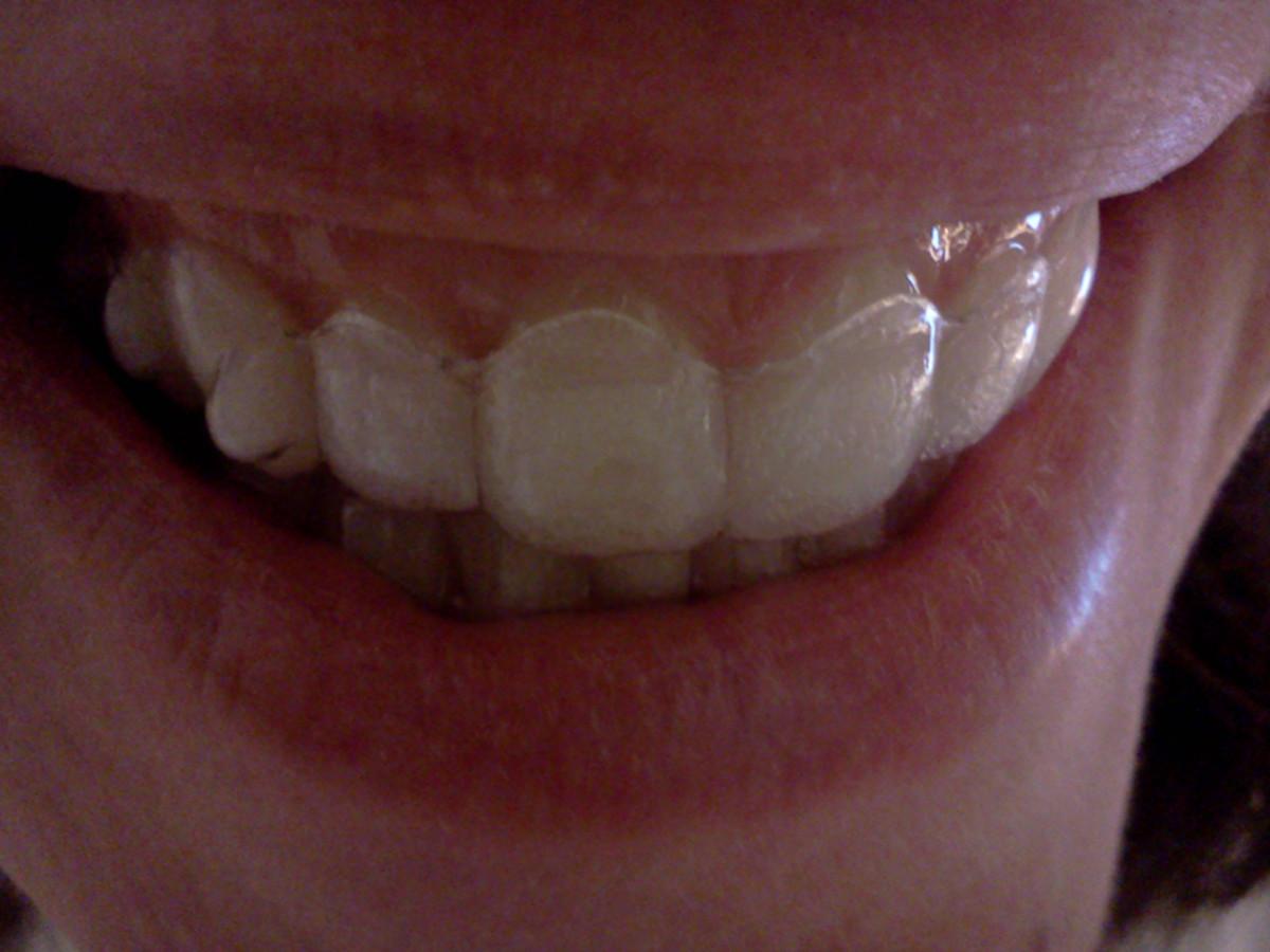 My Invisalign Smile